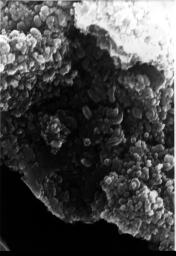 This electron microscope image shows egg-shaped structures, some of which may be possible microscopic fossils of Martian origin as discussed by NASA research published in the Aug. 16, 1996.