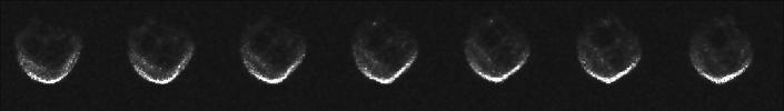 These first radar images of 2015 TB145 from the National Science Foundation's 1,000-foot (305-meter) Arecibo Observatory in Puerto Rico, indicate the near-Earth object is spherical in shape and approximately 2,000 feet (600 meters) in diameter.